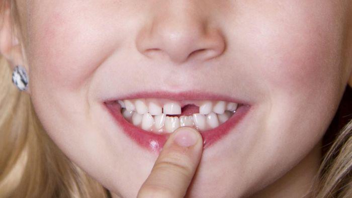 Vì sao lại nằm mơ thấy gãy răng? - Nguồn Kuviet.com