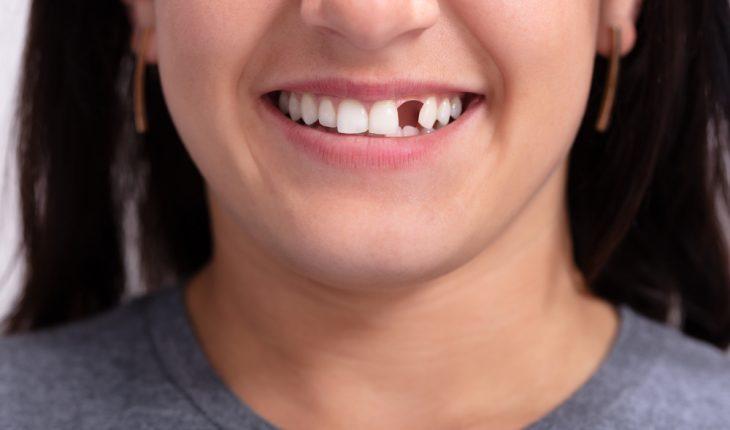 Chiêm bao thấy răng hàm bị rụng không phải giấc mơ ẩn chứa những điềm báo dữ